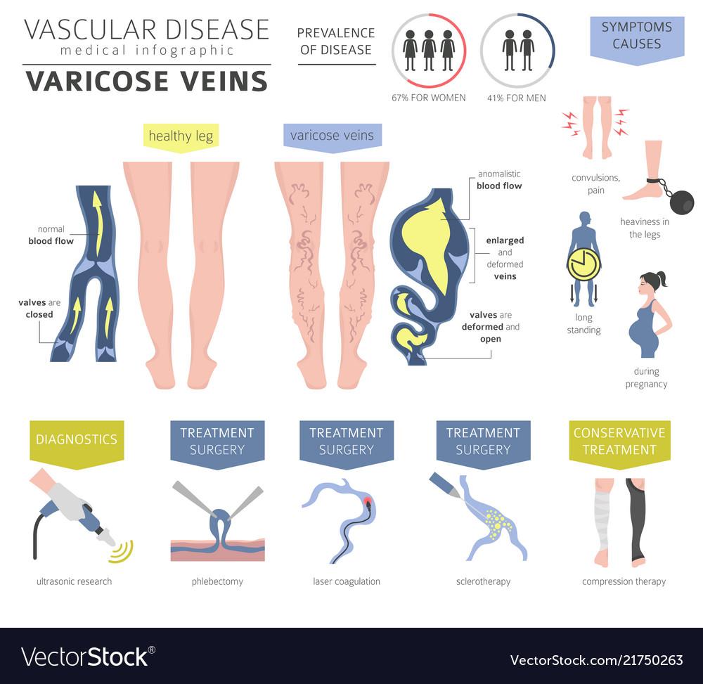 Vascular Diseases Varicose Veins Symptoms Vector Image