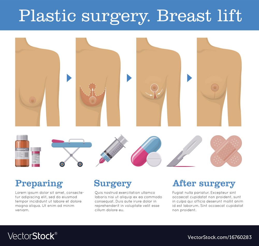 lift patient photos Breast