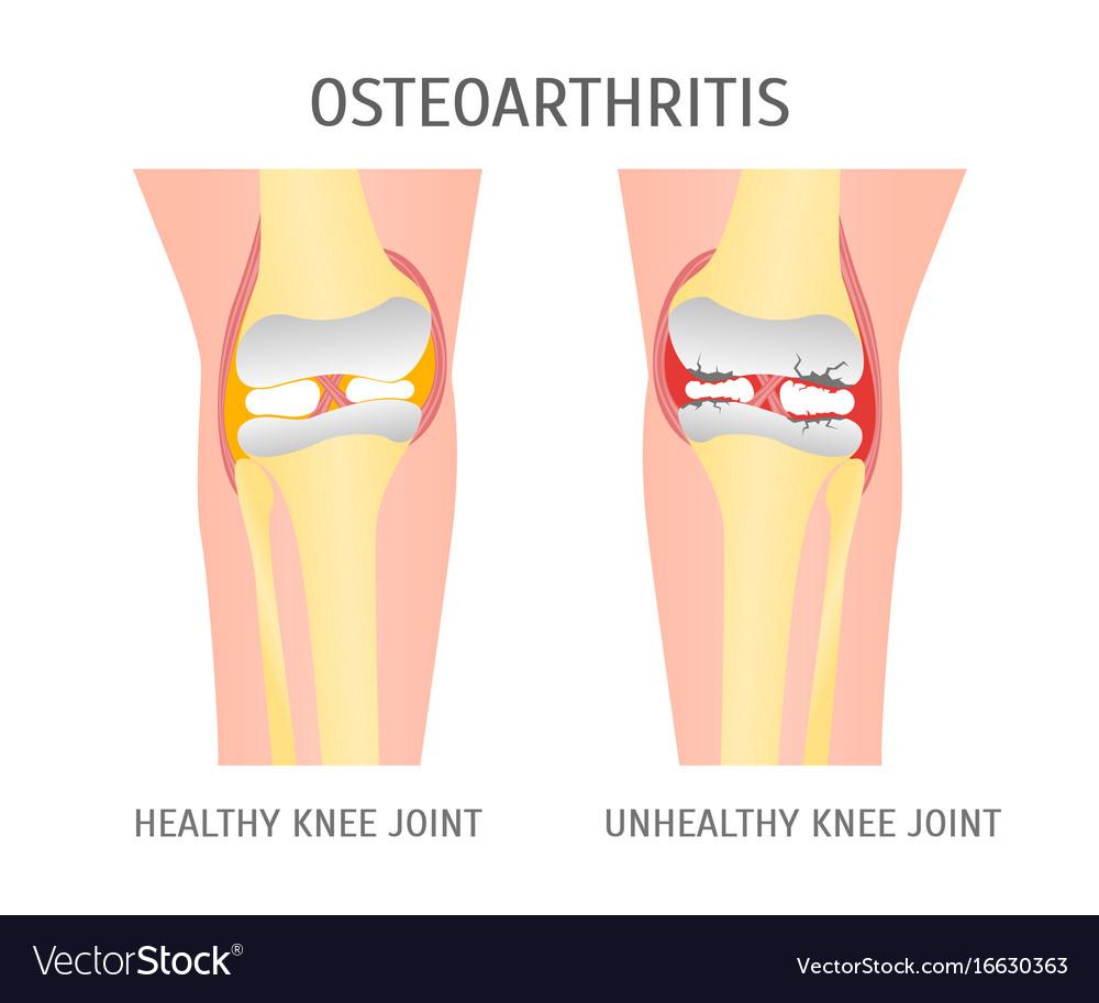 Cartoon osteoarthritis healthy and unhealthy knee
