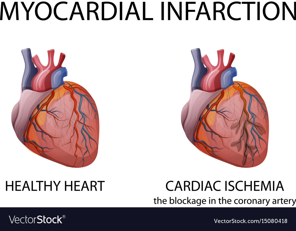 Heart Myocardial Infarction Royalty Free Vector Image