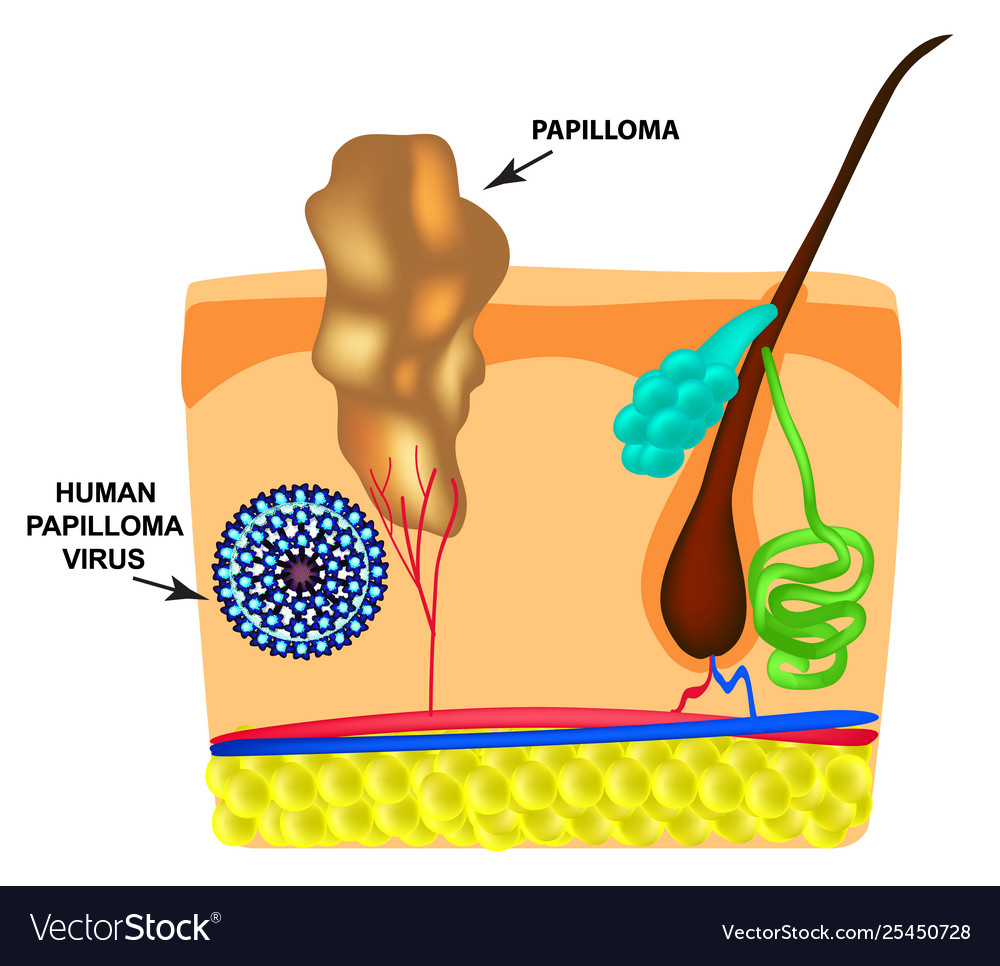 papilloma formation definition)