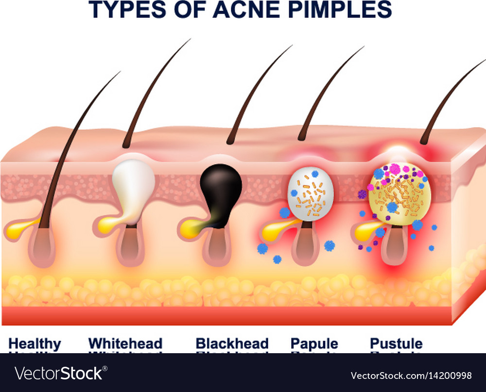 Skin Acne Anatomy Composition Royalty Free Vector Image