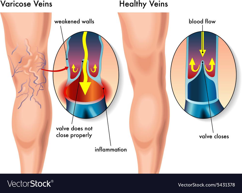 Varicose Veins vector image