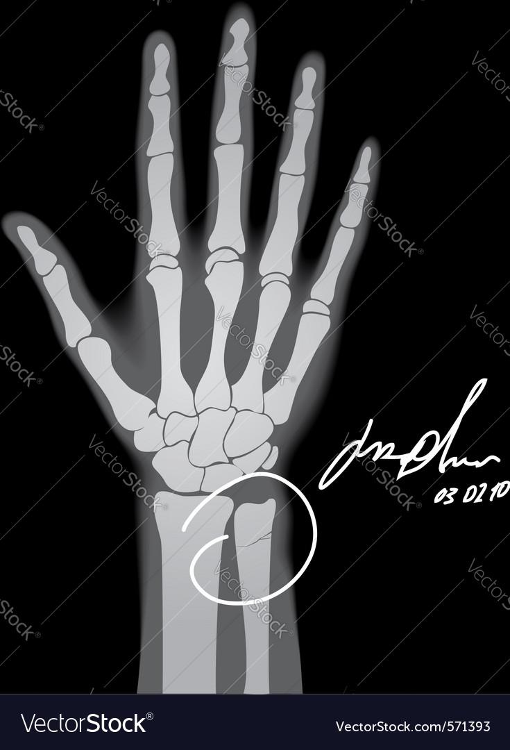 Broken Hand Xray Royalty Free Vector Image Vectorstock