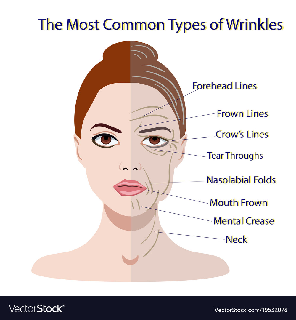 Cosmetic surgery for facial wrinkles