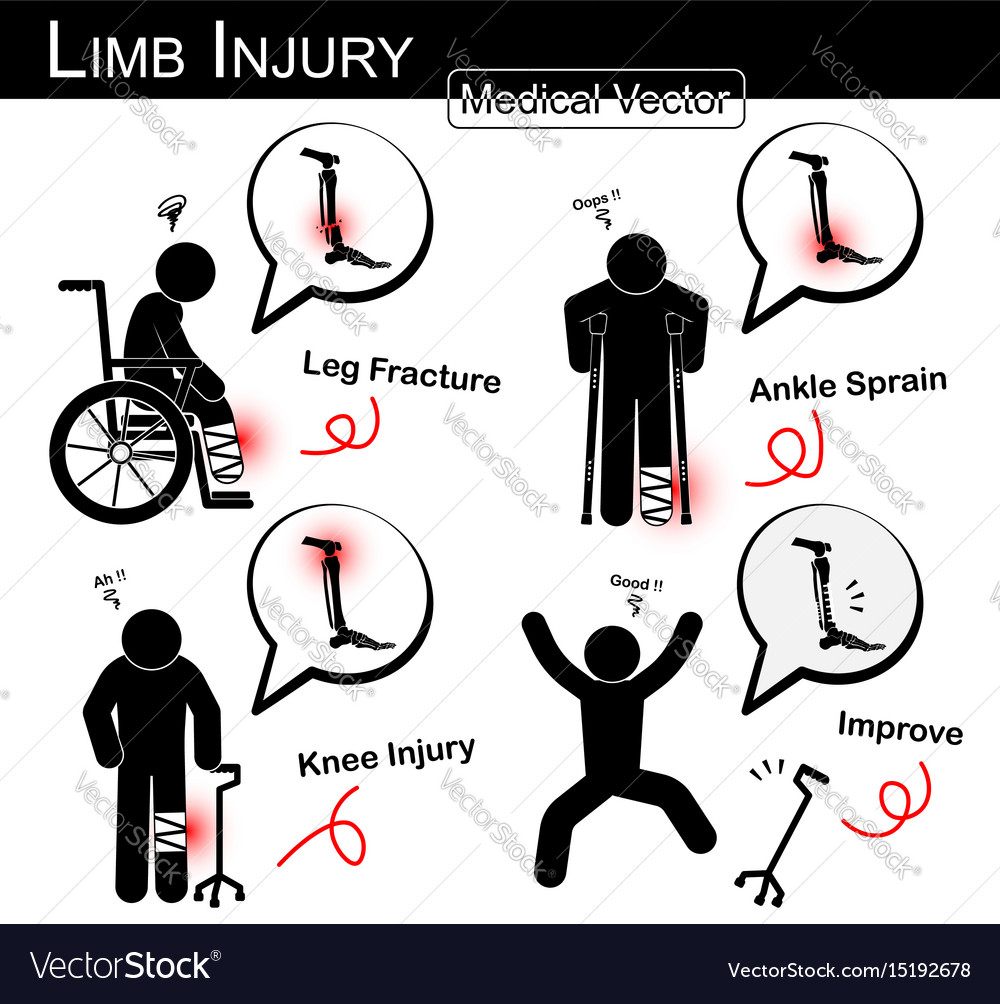 Set of limb injury vector image
