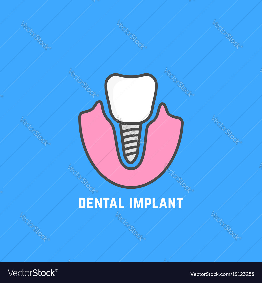 Simple icon of white dental implant