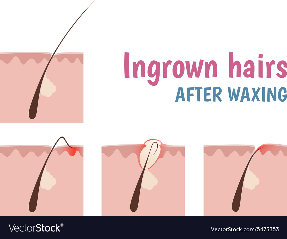 structure of the hair follicle royalty free vector image