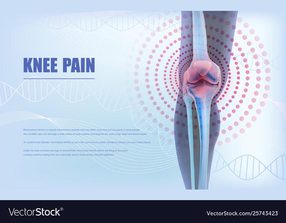 Knee Pain Relief Bones Knee Royalty Free Vector Image