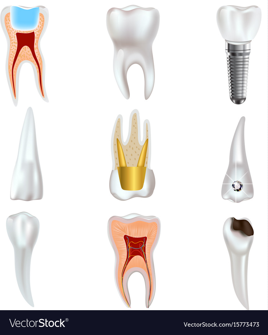 Dental Implant And Real Tooth Anatomy Icon Set Vector Image