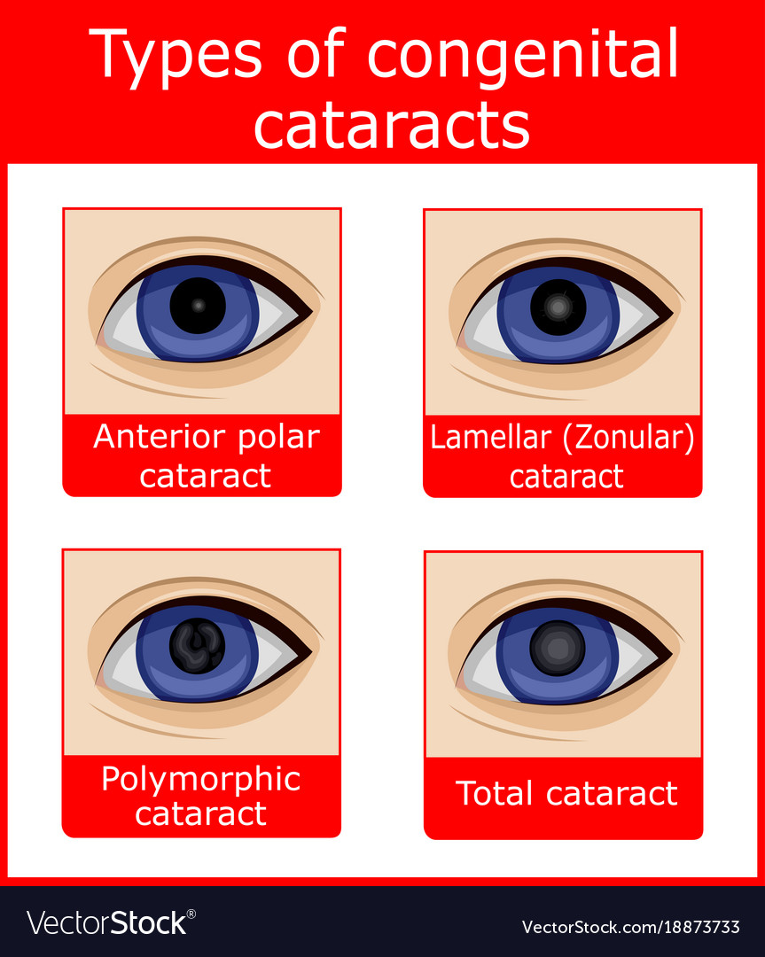 Types Of Congenital Cataracts Royalty Free Vector Image