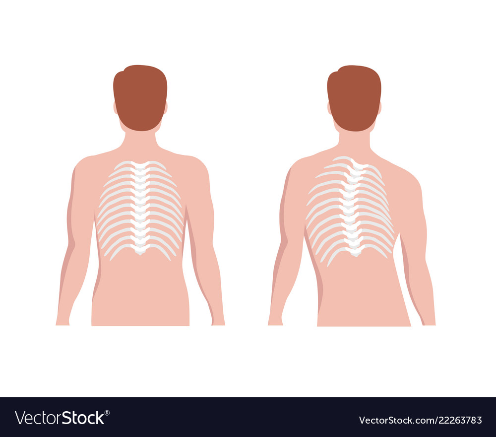 Thoracic Scoliosis On The Thoracic Spine And Vector Image