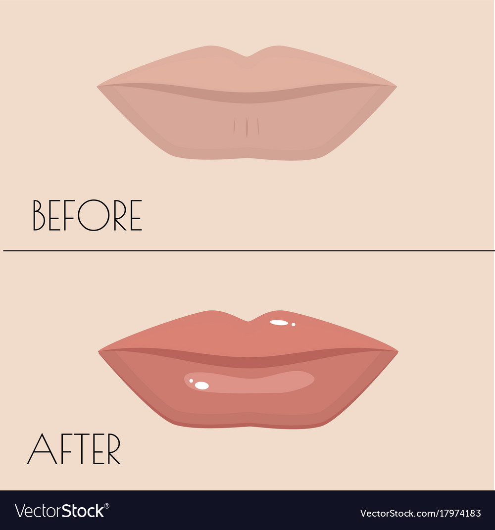 Permanent makeup of lips before and after the