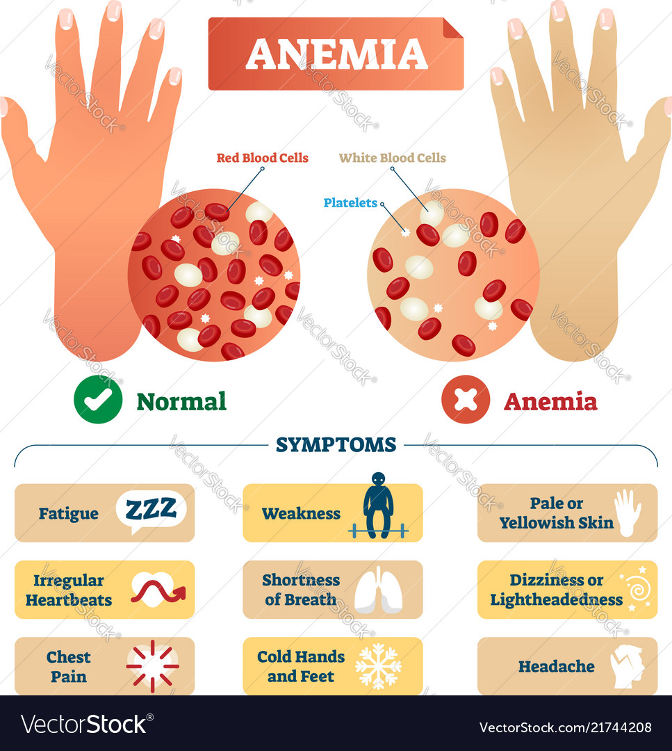 Anemia with blood cells scheme...