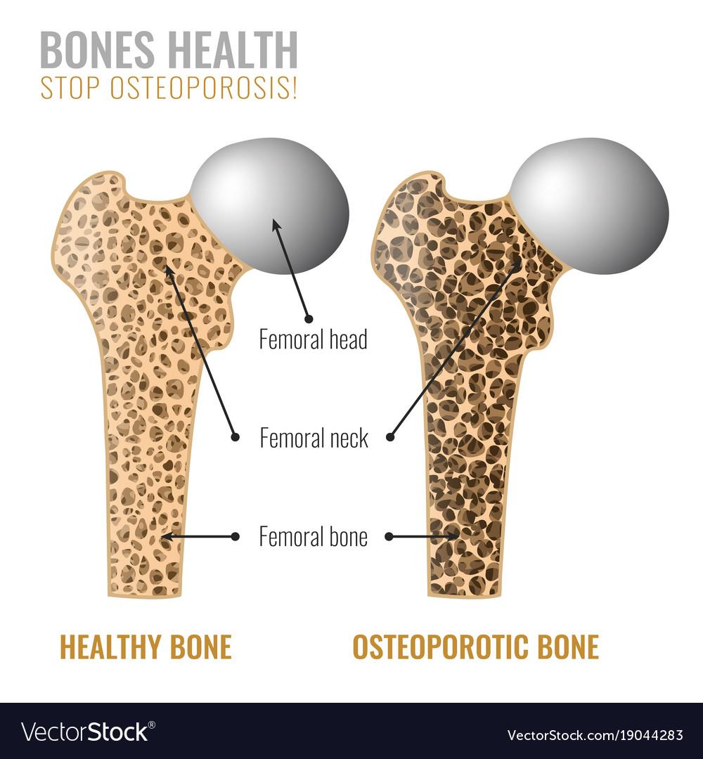 Osteoporosis bone image