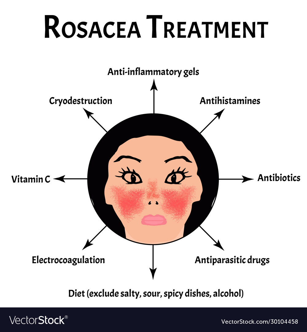 Rosacea Treatment Rosacea Awareness Month Vector Image