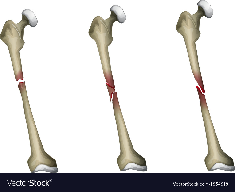 Bone fracture Royalty Free Vector Image - VectorStock
