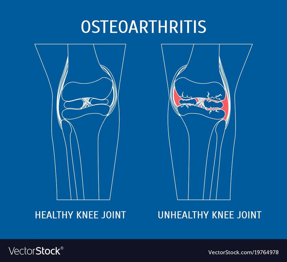 Thin line osteoarthritis healthy and unhealthy