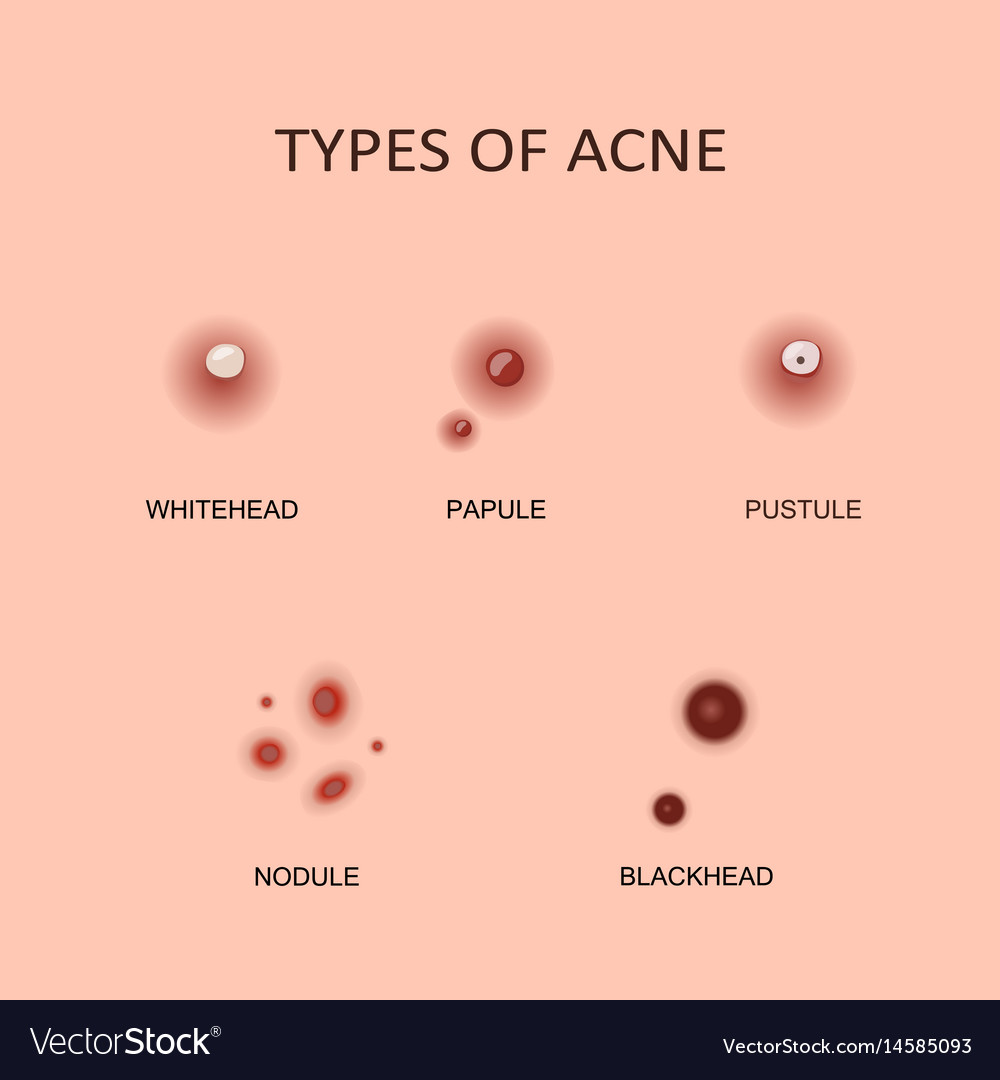 Types Of Acne And Pimples Royalty Free Vector Image