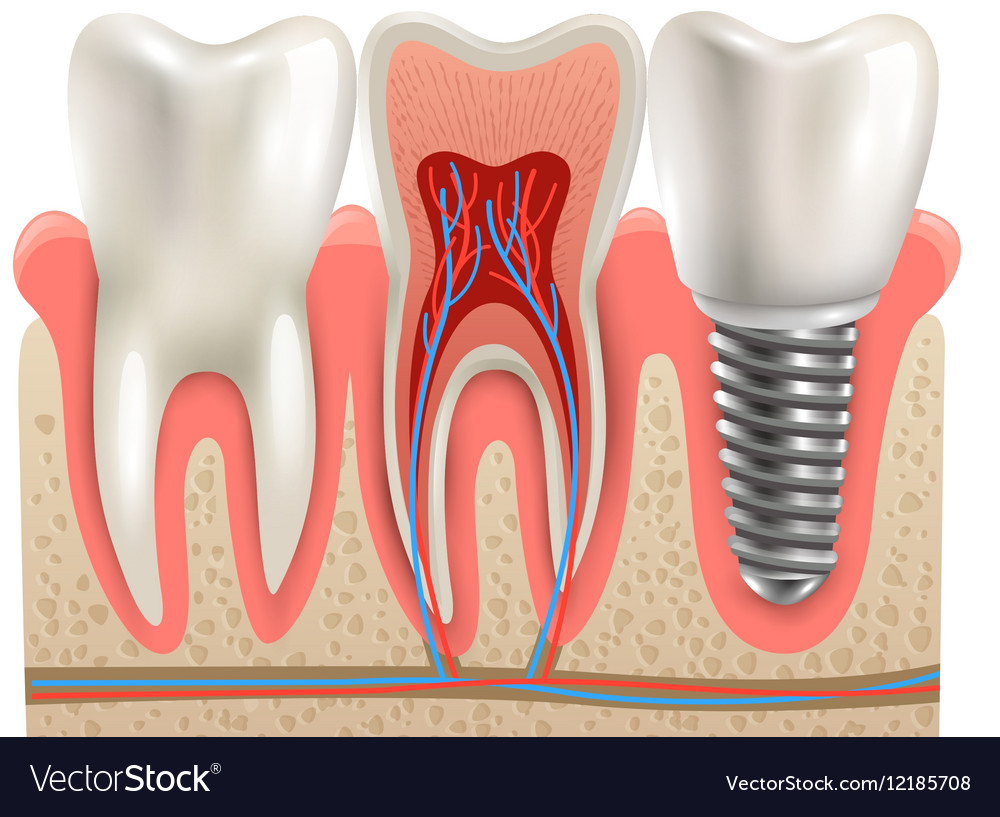 Dental Implants Anatomy Closeup Model Royalty Free Vector