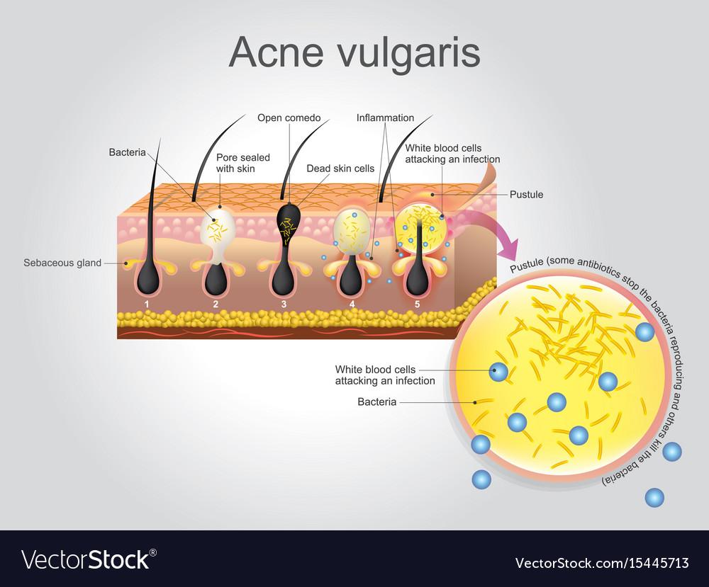 Acne vulgaris vector image