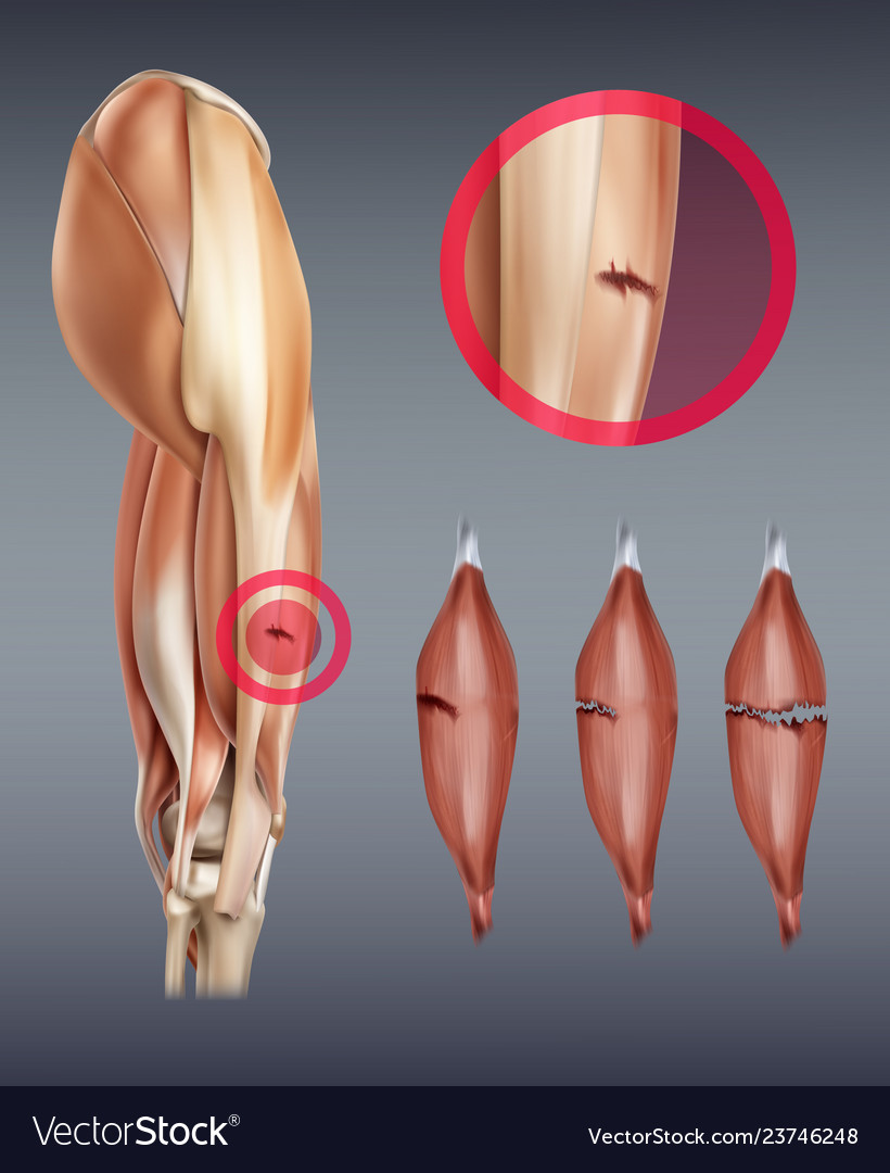 Leg muscle injury with