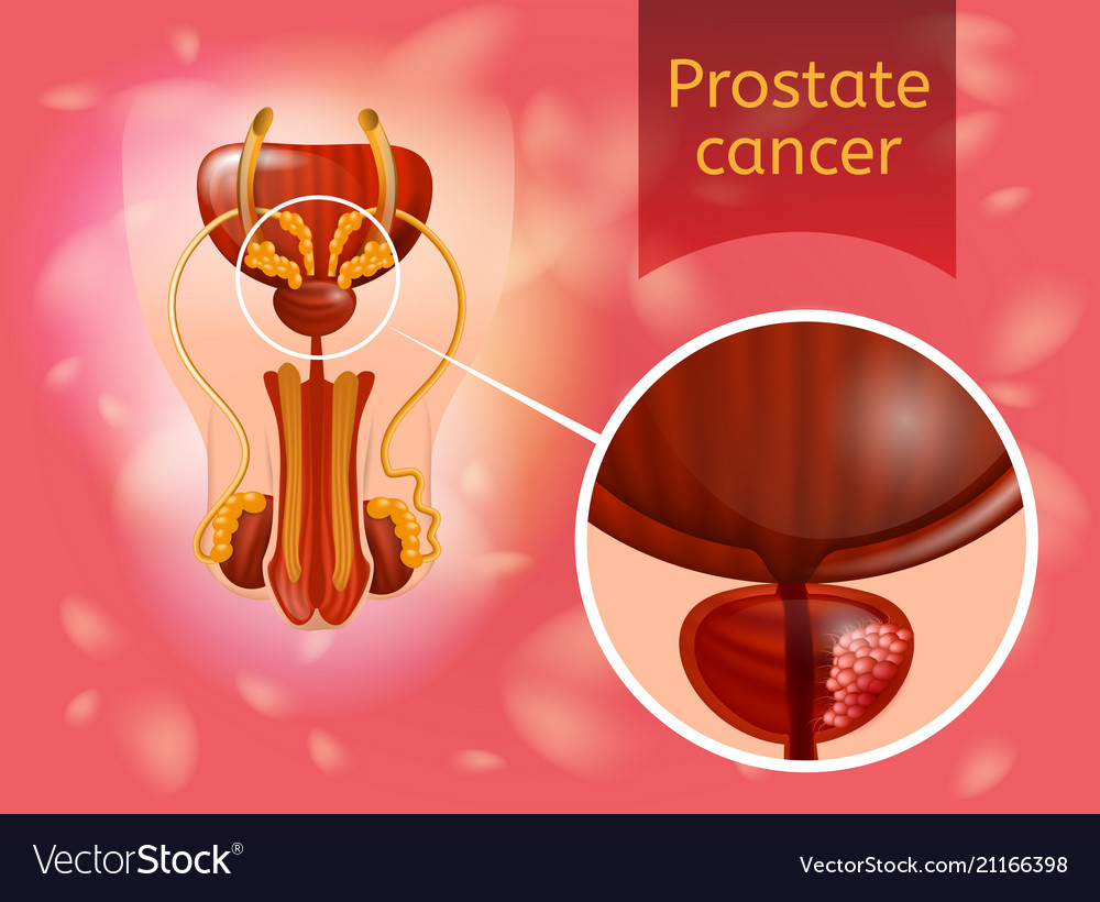 Prostate cancer realistic anatomical scheme Vector Image