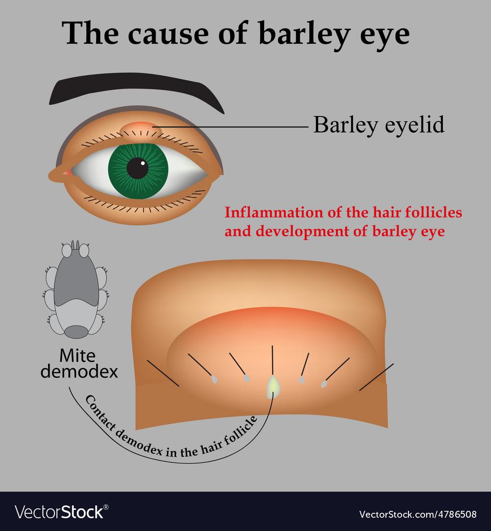 Diseases of the eye barley Causes of barley