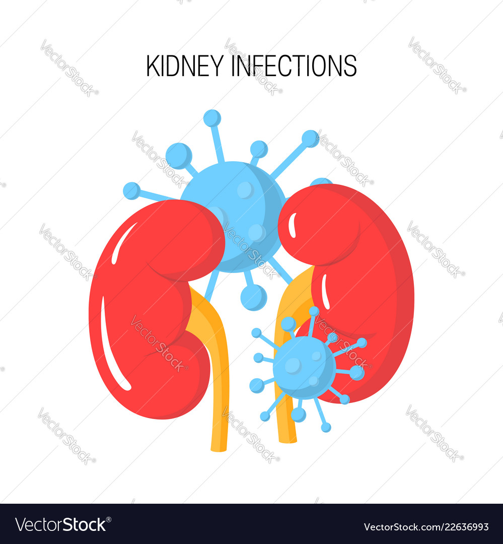 Kidney Infection Concept Royalty Free Vector Image