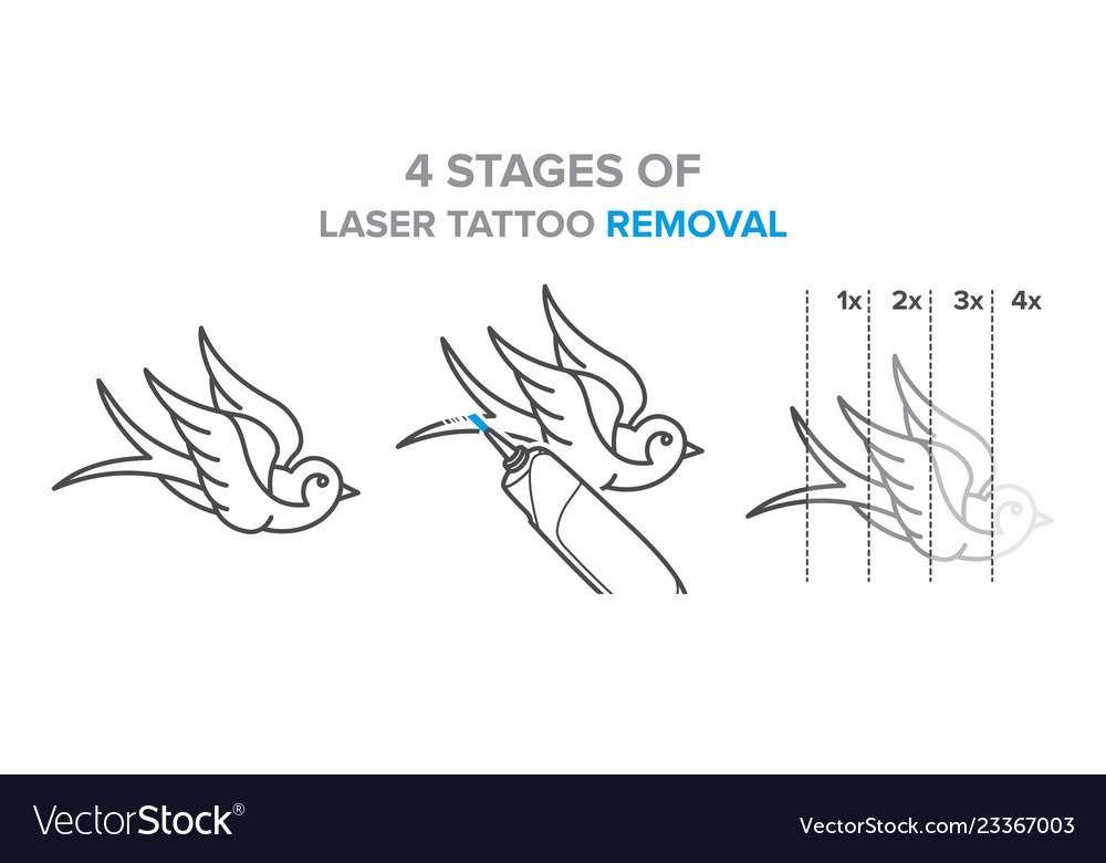 4 Stages Of Laser Tattoo Removal Royalty Free Vector Image