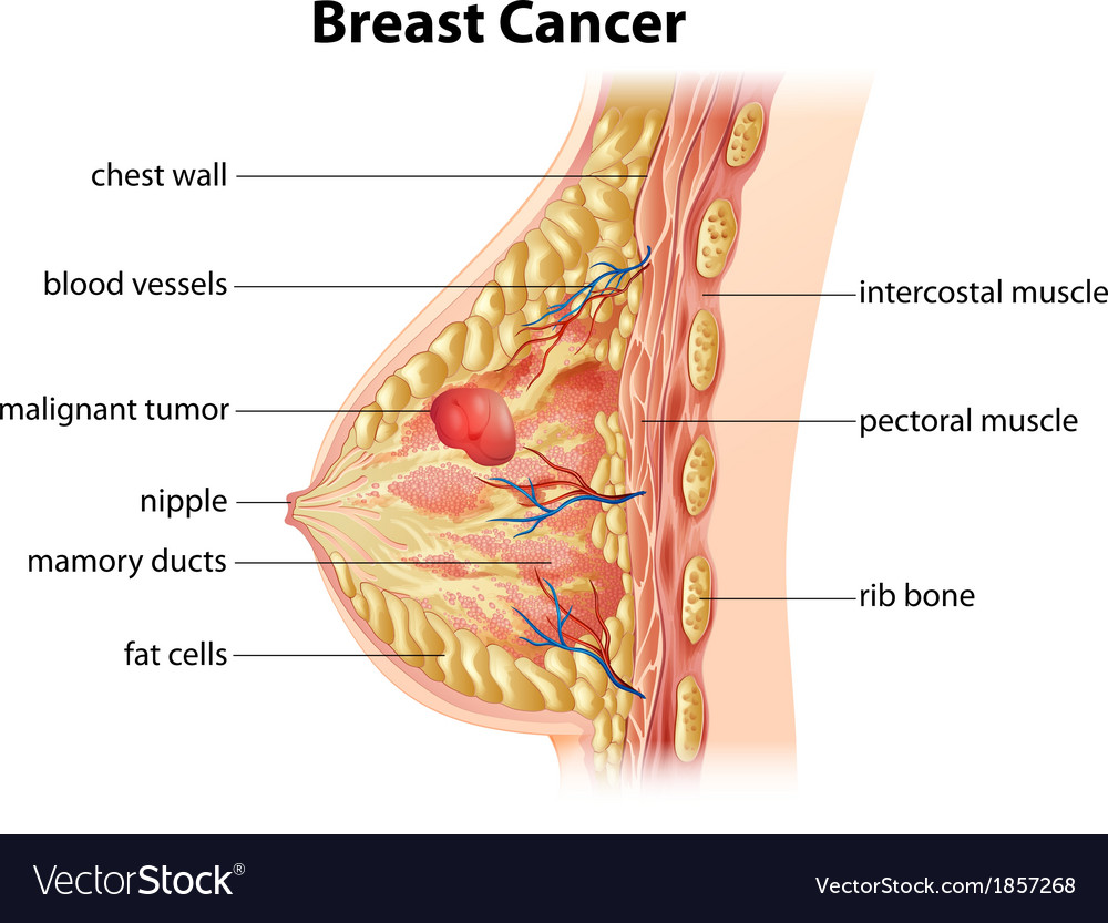 Diagram of breast cancer vector image