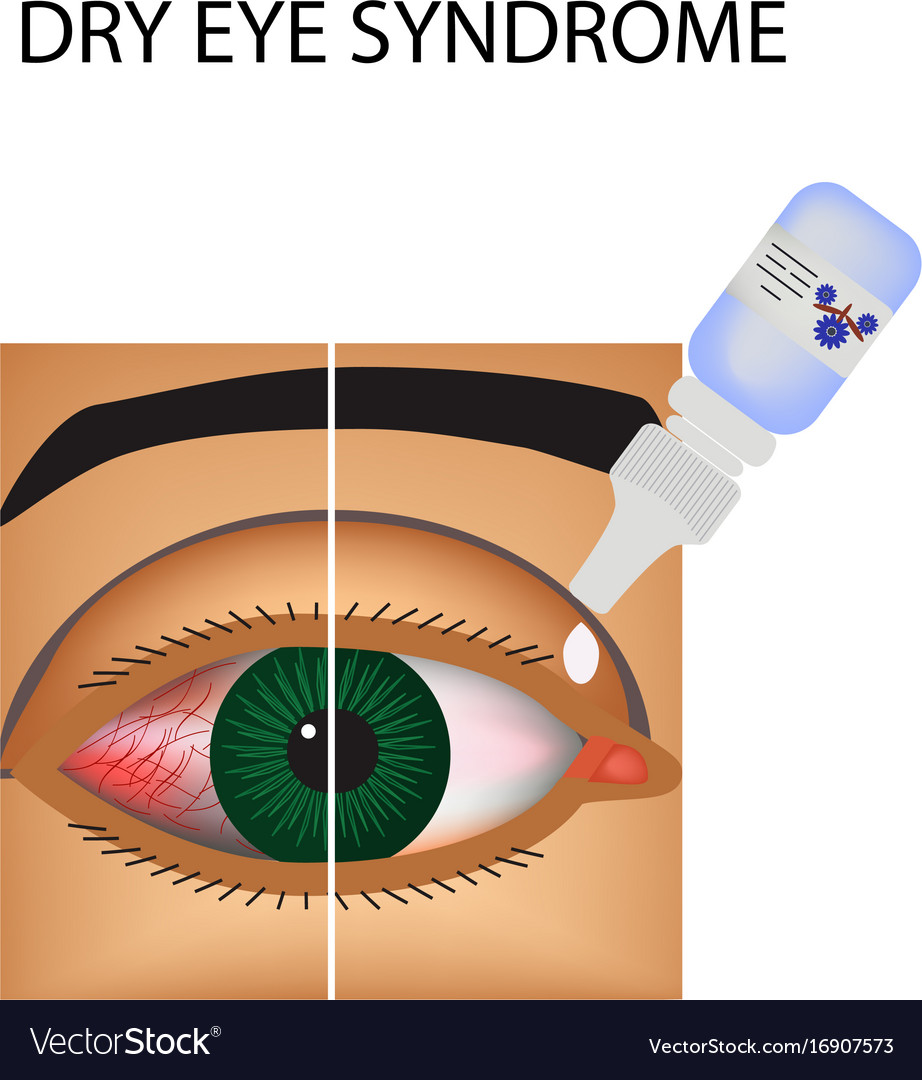 Conjunctivitis redness eye vessels eye drops Vector Image