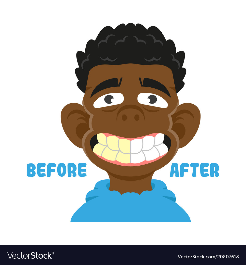 Befor after clean teeth