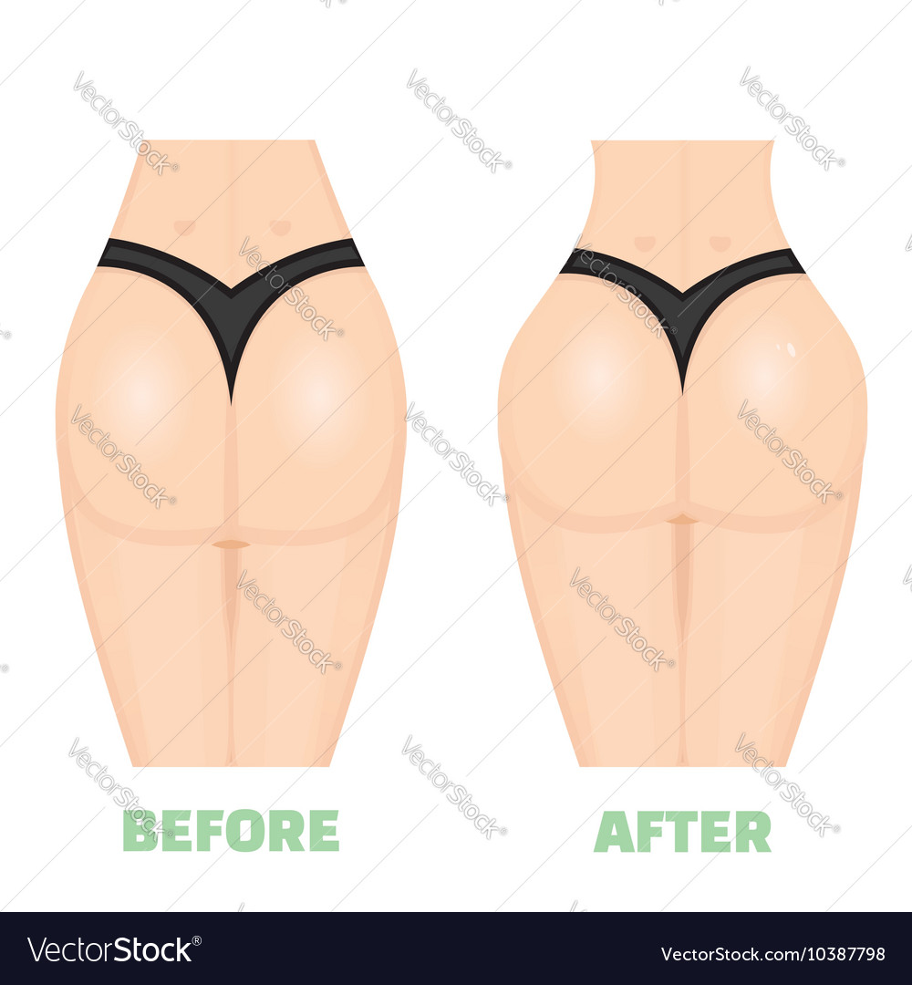 Buttocks breech butt rear nates augmentation