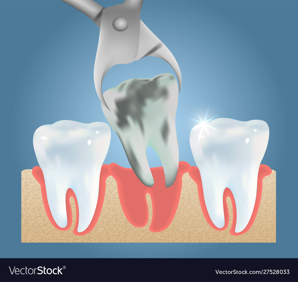 Tooth Extraction Medical Poster Design Royalty Free Vector