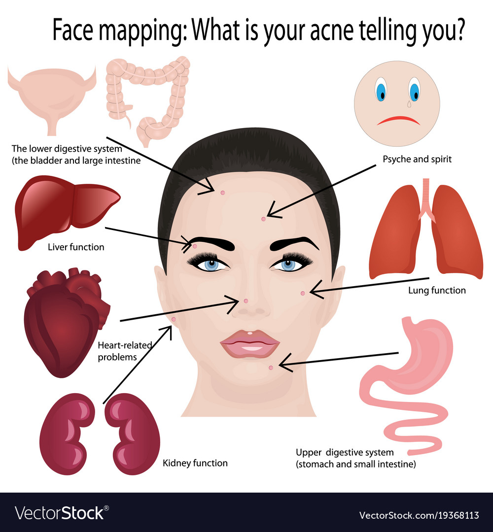 Face Mapping What Acne Telling You Infographic Vector Image - Acne face map organs