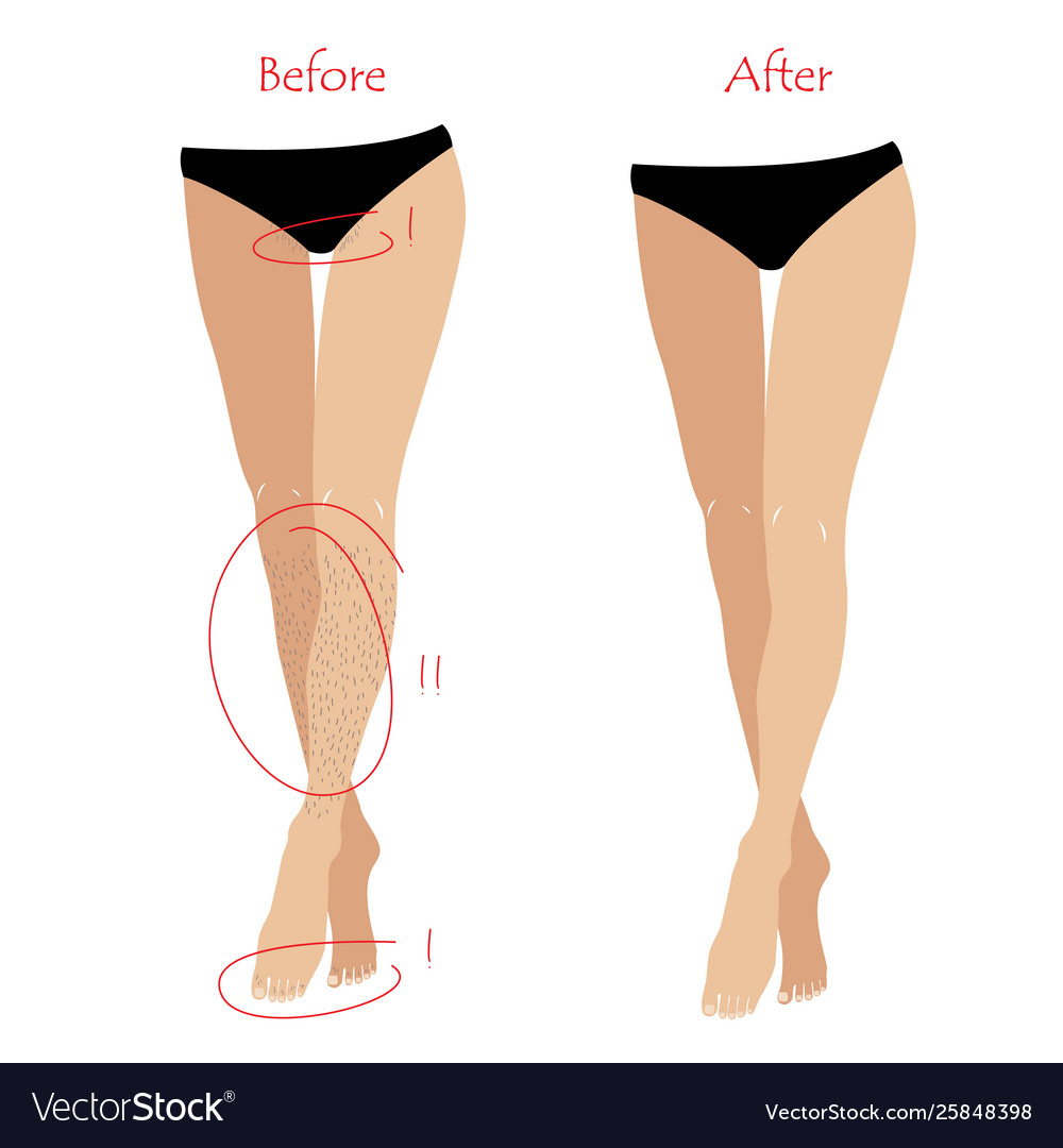 Woman epilation or depilation concept - legs and