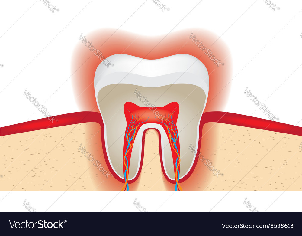 Pulsation of sensitive tooth enamel royalty free vector pulsation of sensitive tooth enamel vector image ccuart Gallery