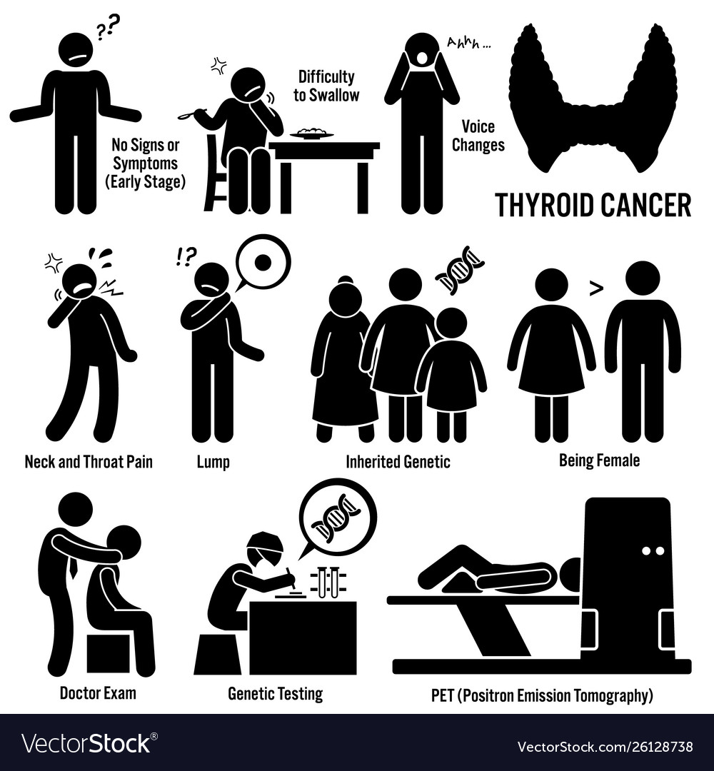 Thyroid Cancer Symptoms Causes Risk Factors Vector Image