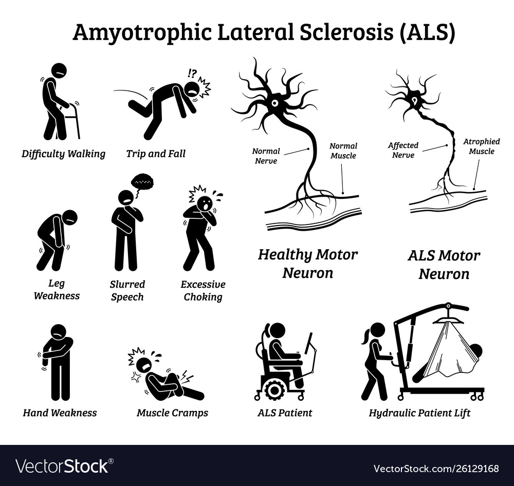 Amyotrophic Lateral Sclerosis Als Disease Signs Vector Image