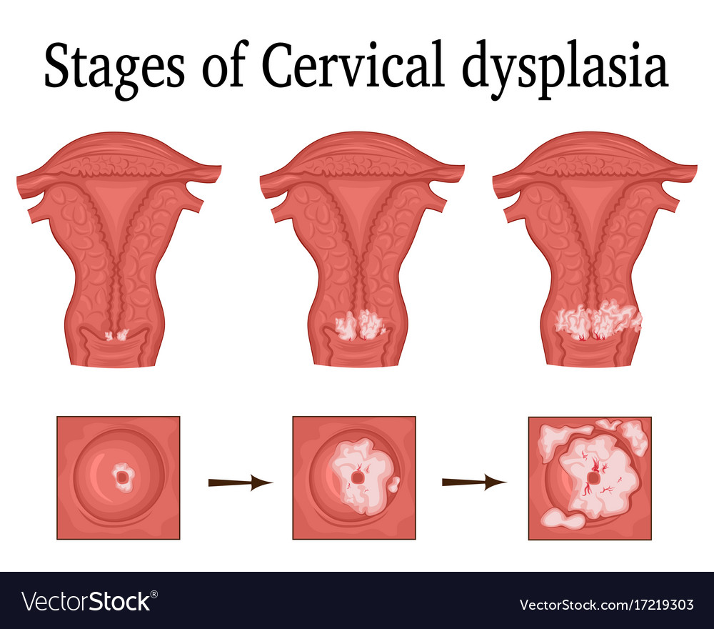 Cervical dysplasia: what is it 26