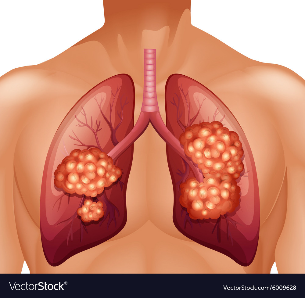 Lung cancer in human