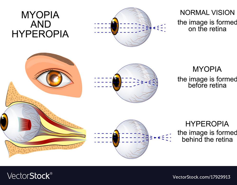 hyperopia 13