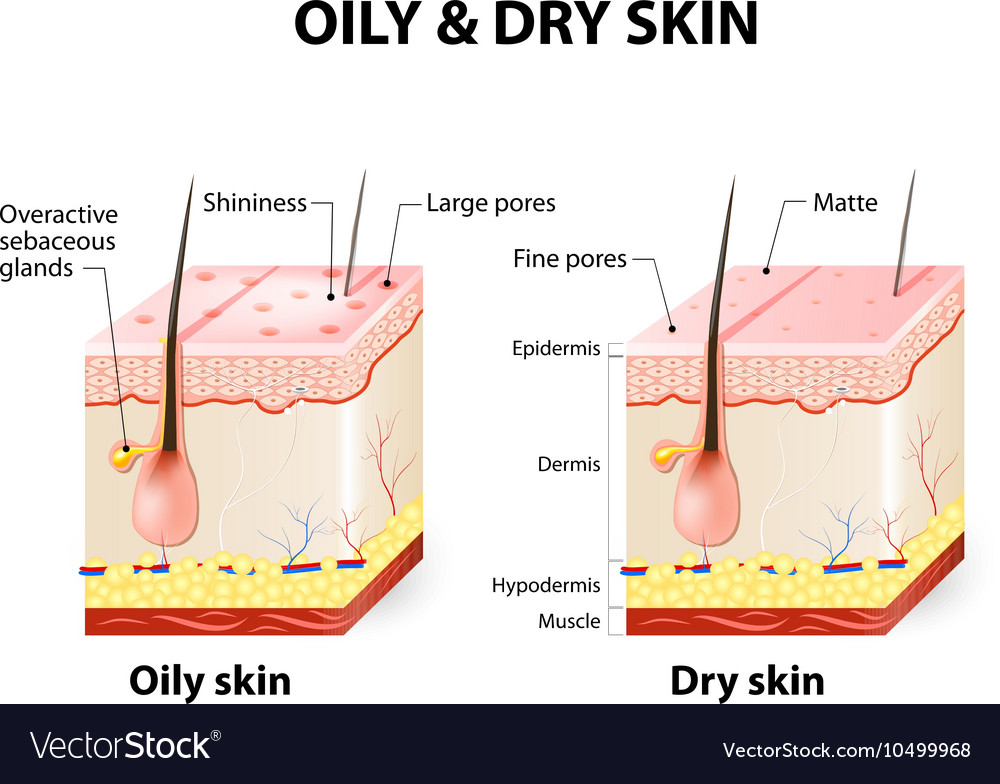 oily and dry skin different vector image