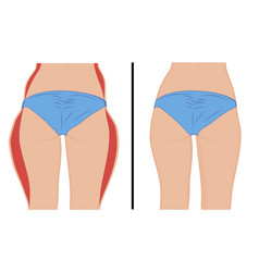fat thigs correction liposuction vector image