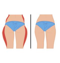 Fat thigs correction liposuction vector