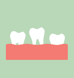 Loose tooth - tooth is fall out from gum vector