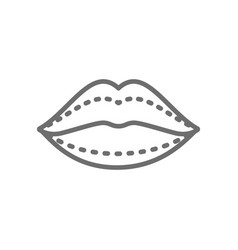 Lip augmentation hyaluronic acid injections vector
