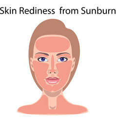 Face with burnt skin vector