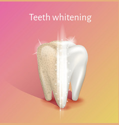 Tooth whitening in realistic 3d vector